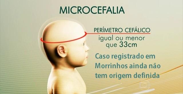 MICROCEFALIA: Caso registrado em Morrinhos ainda não tem causa definida